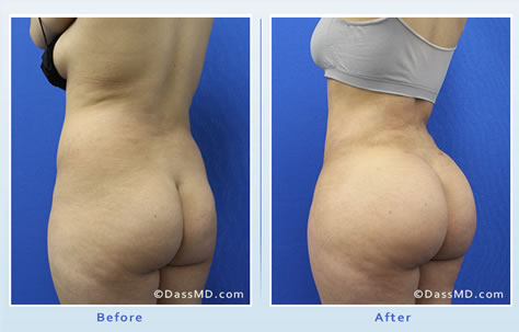 A Brazilian butt lift uses fat that comes from areas of the body with excess such as the abdomen or thighs and then implants the same fat into the buttocks.