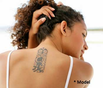 patients enjoy effective laser tattoo removal