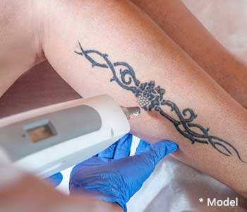 Effective laser tattoo removal from plastic surgeon in Beverly Hills