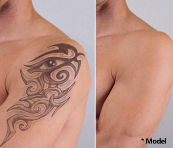 successful tattoo removal effective