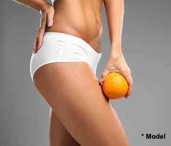 The tummy tuck is commonly requested by patients who have lost substantial amounts of weight