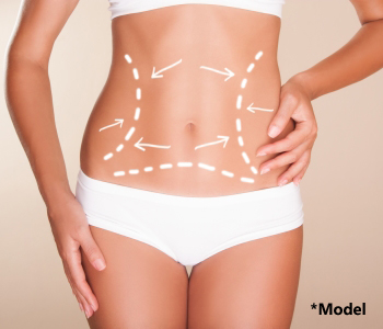 Cost effective tummy tuck from Beverly Hills area surgeon