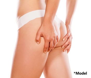 Buttock enlargement with fat injections in Beverly Hills