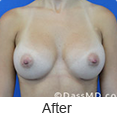 Breast Augmentation in Beverly Hills - Image link to photo gallery 2