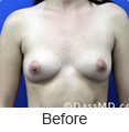 Breast Augmentation in Beverly Hills - Image link to photo gallery 1