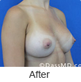 Breast Augmentation in Beverly Hills - Image link to photo gallery 4