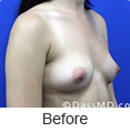 Breast Augmentation in Beverly Hills - Image link to photo gallery 3