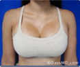 Breast Enhancement Beverly Hills - photo gallery 4