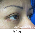 Eyelid Surgery Beverly Hills CA - photo gallery 2