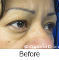 Eyelid Surgery Beverly Hills CA - photo gallery 1