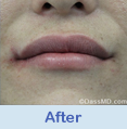 Lip Augmentation Beverly Hills CA - photo gallery 2