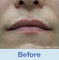 Lip Augmentation Beverly Hills CA - photo gallery 1