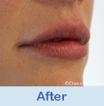 Lip Augmentation Beverly Hills CA - photo gallery 4