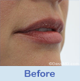 Lip Augmentation Beverly Hills CA - photo gallery 3