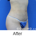 Laser Skin Tightening - Dr Dennis Dass, MD Image link to photo gallery 2