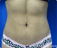 Liposuction Beverly Hills - Image link to photo gallery 1