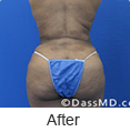 Laser Skin Tightening - Dr Dennis Dass, MD Image link to photo gallery 4