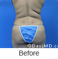 Laser Skin Tightening - Dr Dennis Dass, MD Image link to photo gallery 3