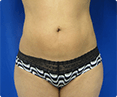 Liposuction Beverly Hills - Image link to photo gallery 3