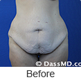 Tummy Tuck Beverly Hills CA from Dr Dennis Dass, MD photo gallery 1