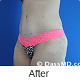 Tummy Tuck Beverly Hills CA from Dr Dennis Dass, MD photo gallery 4