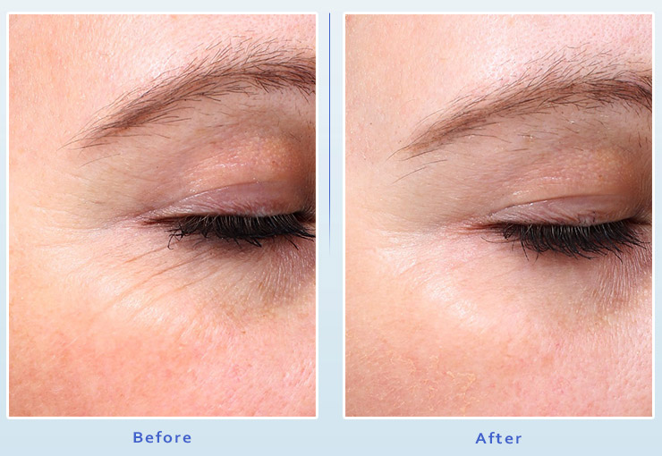 Picosure Laser Facial Resurfacing from Dr Dennis Dass, MD Image 1