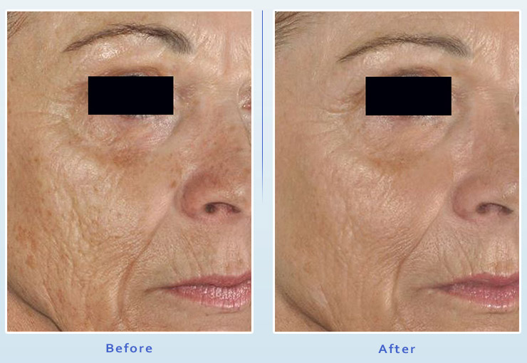 Picosure Laser Facial Resurfacing from Dr Dennis Dass, MD Image 2