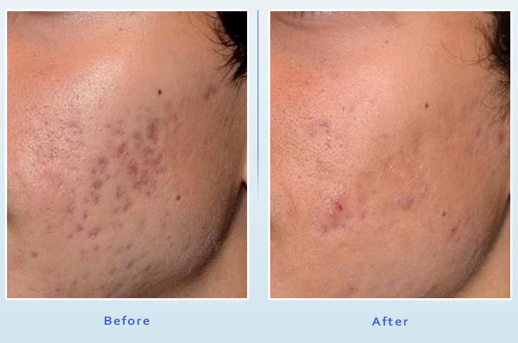 Picosure Laser Facial Resurfacing from Dr Dennis Dass, MD Image 4