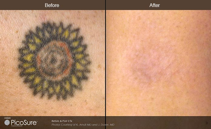 PicoSure Before and After Image 1