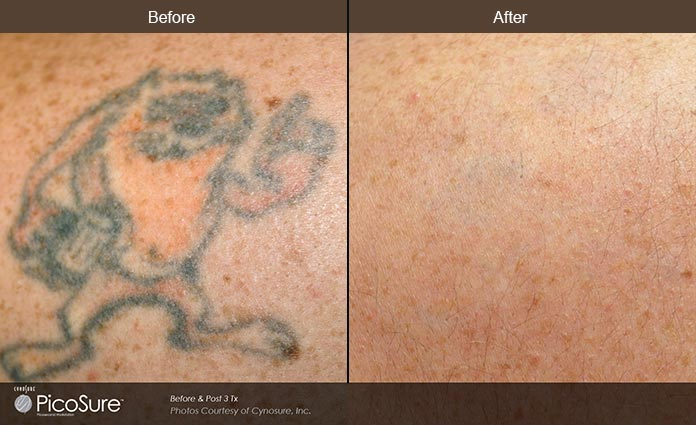 PicoSure Before and After Image 2