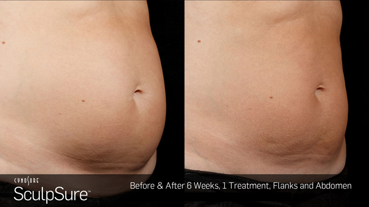 Body Contouring Beverly Hills - Image 1