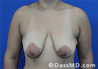 Breast Augmentation with Lift Beverly Hills - Before Case 1 - 1