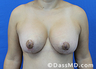 Breast Augmentation with Lift Beverly Hills - After Case 1 - 1