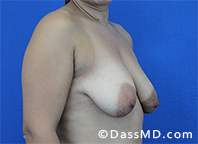 Breast Augmentation with Lift Beverly Hills - Before Case 1 - 2