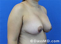 Breast Augmentation with Lift Beverly Hills - After Case 1 - 2