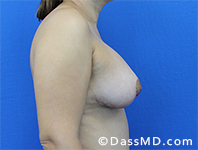 Breast Augmentation with Lift Beverly Hills - After Case 1 - 3