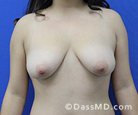 Breast Augmentation with Lift Beverly Hills - Breast Augmentation View Before 10 - 1