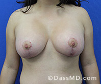 Breast Augmentation with Lift Beverly Hills - Breast Augmentation View After 10 - 1