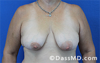 Breast Augmentation with Lift Beverly Hills - Before Case 2 - 1