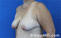 Breast Augmentation with Lift Beverly Hills - Before Case 2 - 2