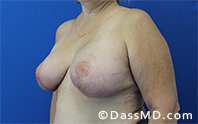 Breast Augmentation with Lift Beverly Hills - After Case 2 - 2