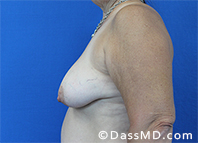 Breast Augmentation with Lift Beverly Hills - Before Case 2 - 3