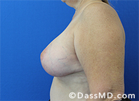 Breast Augmentation with Lift Beverly Hills - After Case 2 - 3