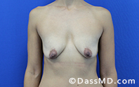 Breast Augmentation with Lift Beverly Hills - Before Case 10 - 1