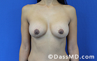 Breast Augmentation with Lift Beverly Hills - After Case 10 - 1