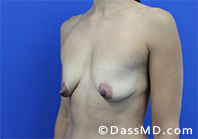 Breast Augmentation with Lift Beverly Hills - Before Case 10 - 2
