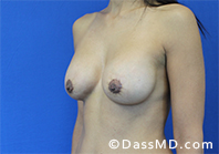 Breast Augmentation with Lift Beverly Hills - After Case 10 - 2