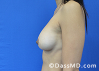 Breast Augmentation with Lift Beverly Hills - After Case 10 - 3