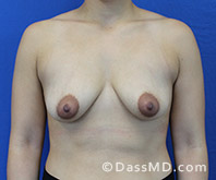 Breast Augmentation with Lift Beverly Hills - Breast Augmentation View Before 8 - 1