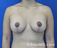Breast Augmentation with Lift Beverly Hills - Breast Augmentation View After 8 - 1